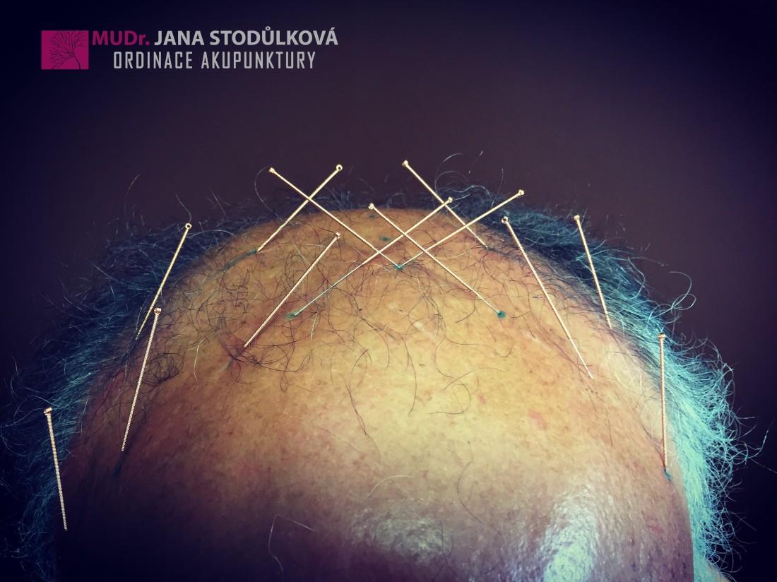 Skalpová akupunktura
